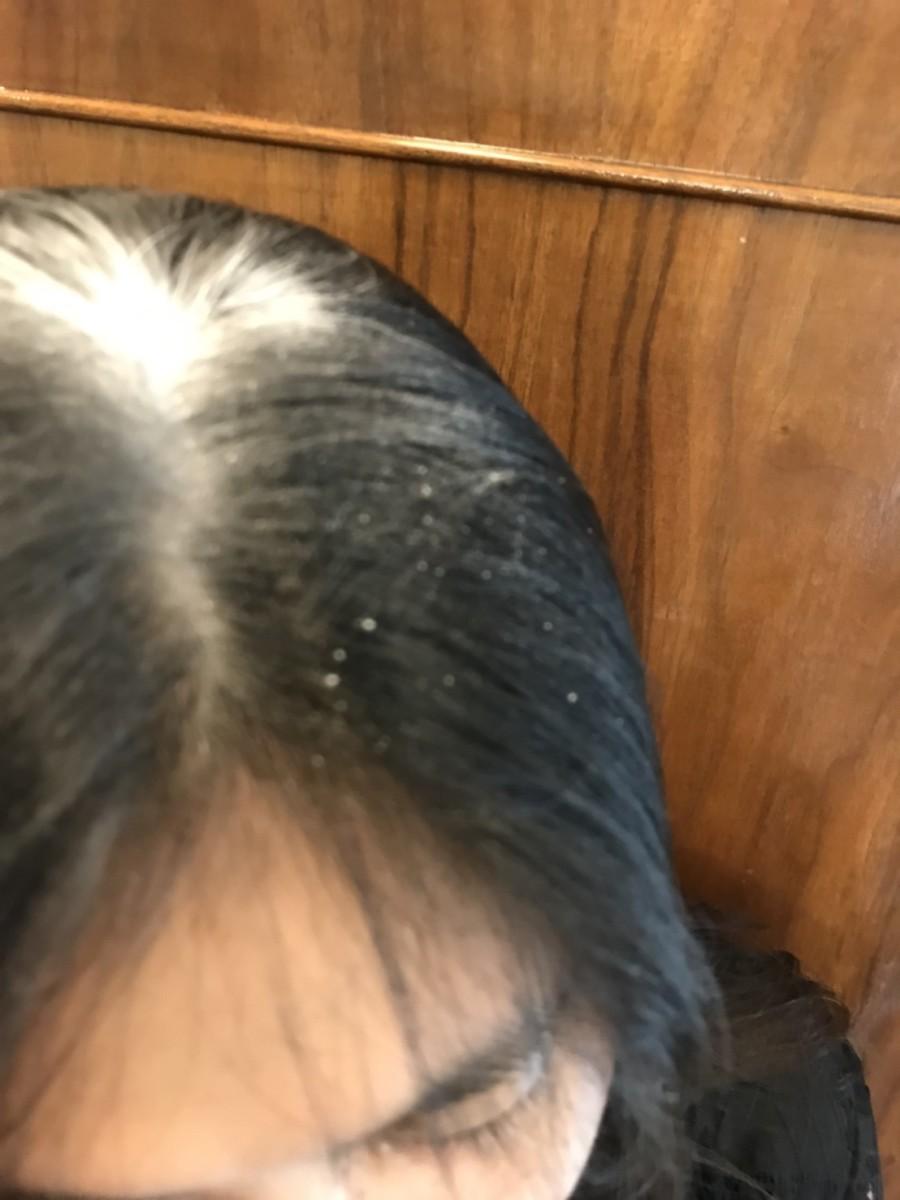 歐洲專業髮品推薦-Syoss絲蘊乾洗髮霧(控油清爽型) 告別扁塌,夏天出門好幫手、造型好夥伴! 彩妝品分享 攝影 民生資訊分享 美髮相關