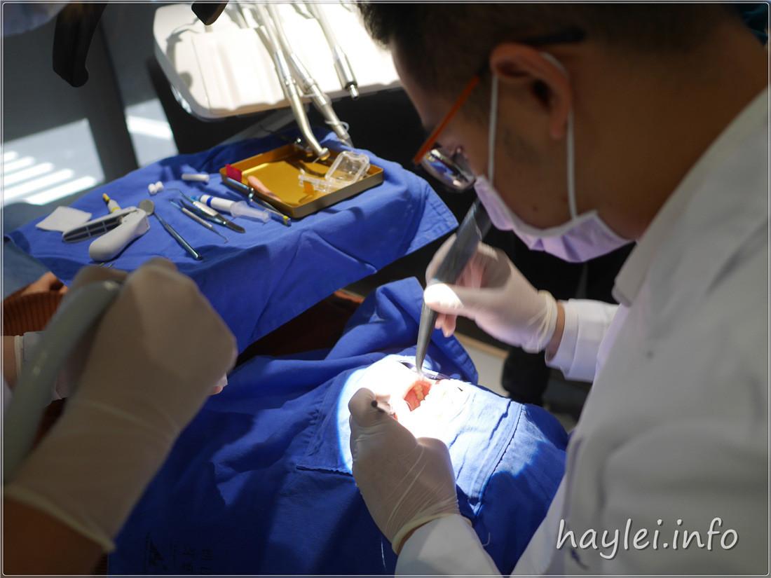 台中牙醫推薦-朗日牙藝一日美齒,無論假牙、貼片,找劉得廷醫師安心又妥適! 健康養身 攝影 民生資訊分享 醫美